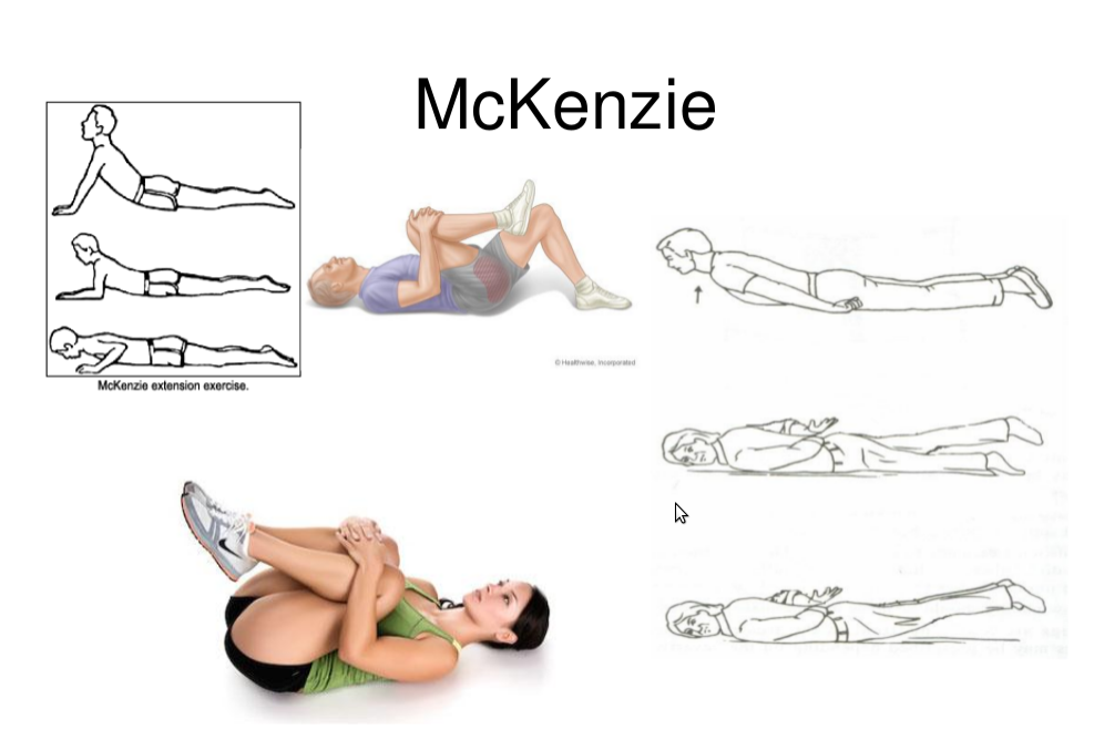 Image Result For Mckenzie Method Herniated Disc
