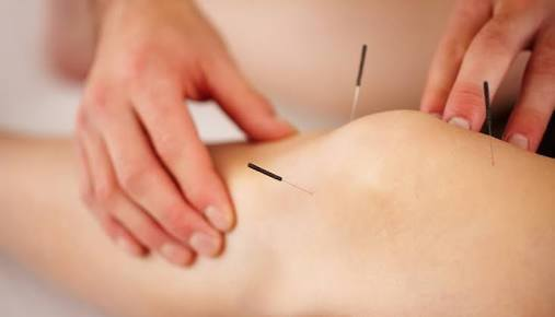 Advanced Therapeutic Acupuncture Workshop – OCT 2018